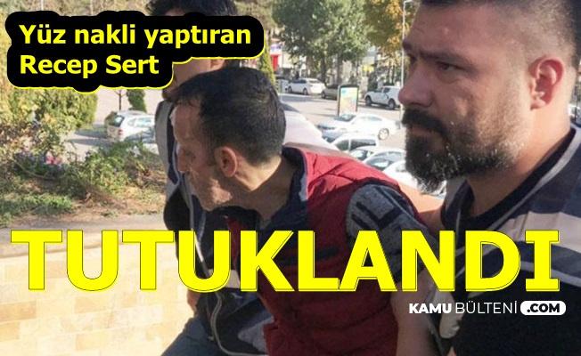 Yüz Nakli Yaptırmıştı: Recep Sert Tutuklandı