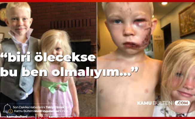 4 Yaşındaki Kız Kardeşi için Ölümü Göze Aldı