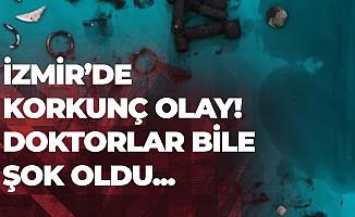 İzmir'de Akıllara Durgunluk Veren Olay! Midesini Açtıklarında Doktorlar Bile Şok Oldu!
