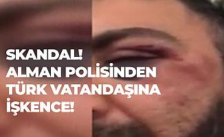 Naziler İş Başında! Almanya'da 5 Polisten Türk Vatandaşına İşkence!