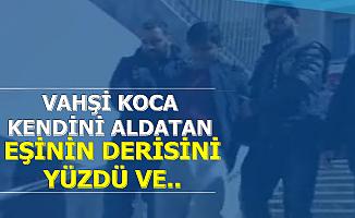 İstanbul'da Korkunç Olay: Vahşi Koca, Eşinin Derisini Yüzüp..