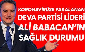 DEVA Partisi Lideri Ali Babacan'ın Koronavirüs Tedavisi Evinde Devam Edecek